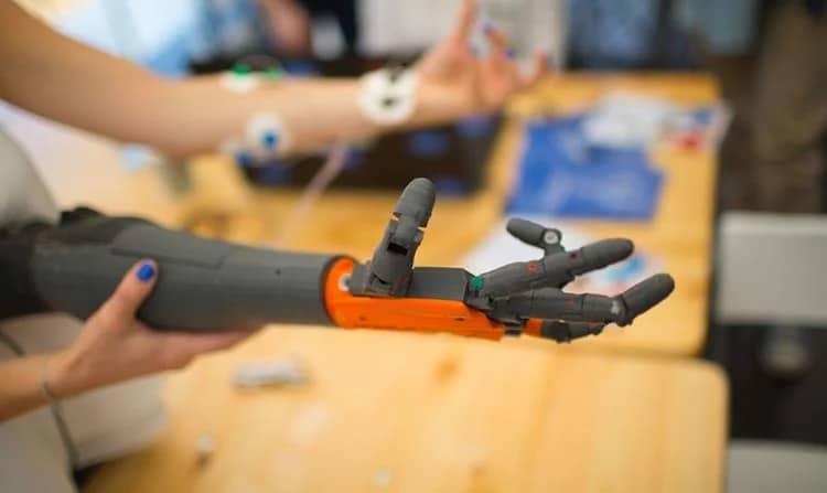 Engellerimizi kaldıran teknolojik gelişmeler protez